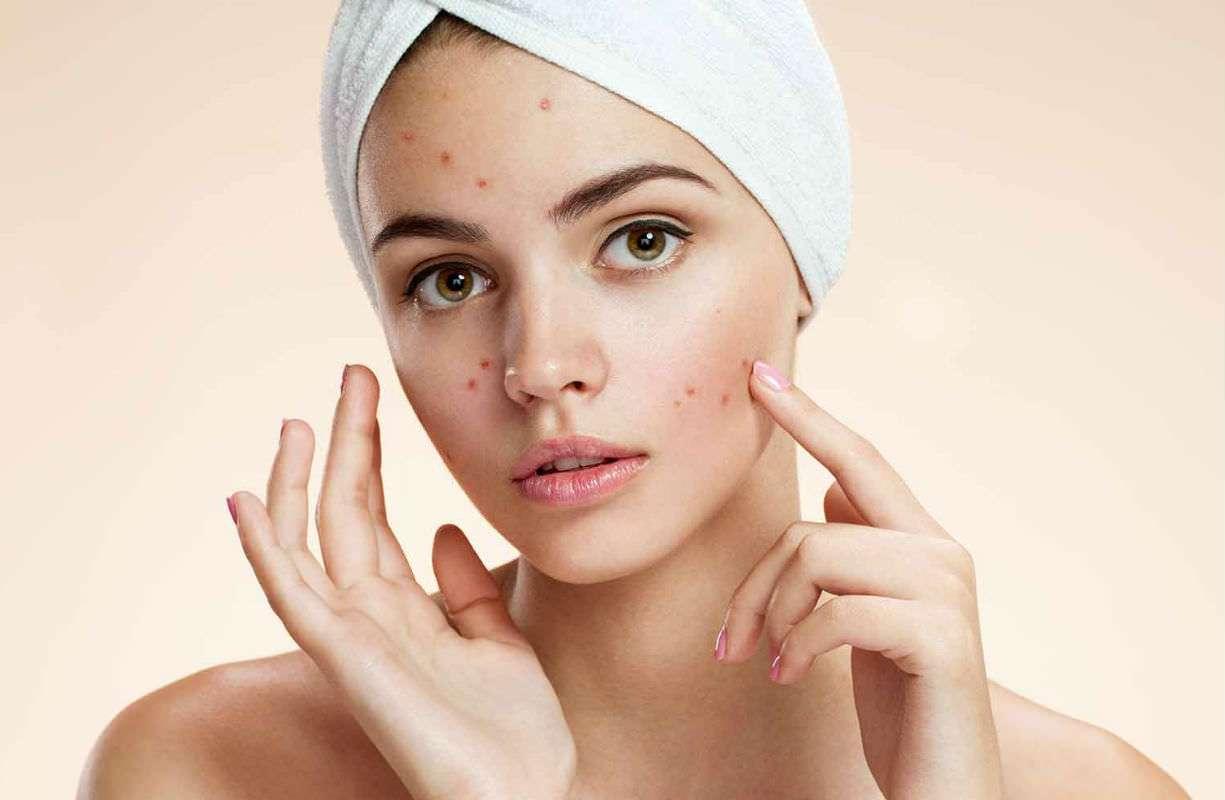 Mercoledì 4 NOVEMBRE - Pelle grassa e acne?
