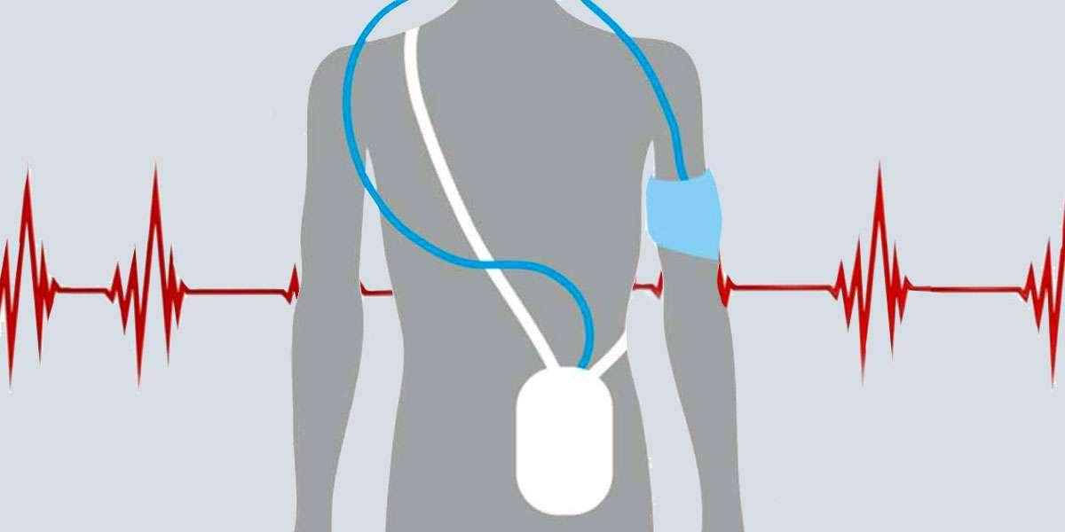 Controllo della pressione arteriosa nelle 24 ore secondo holter