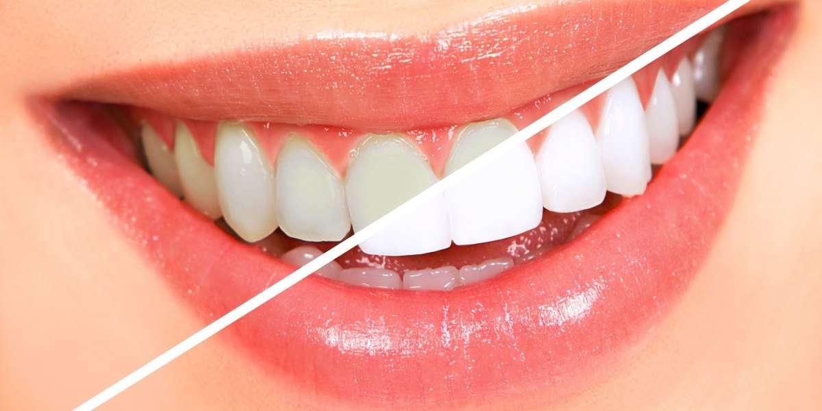 Sbiancamento denti