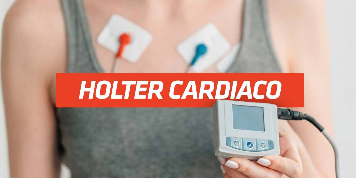 holter cardiaco 24h