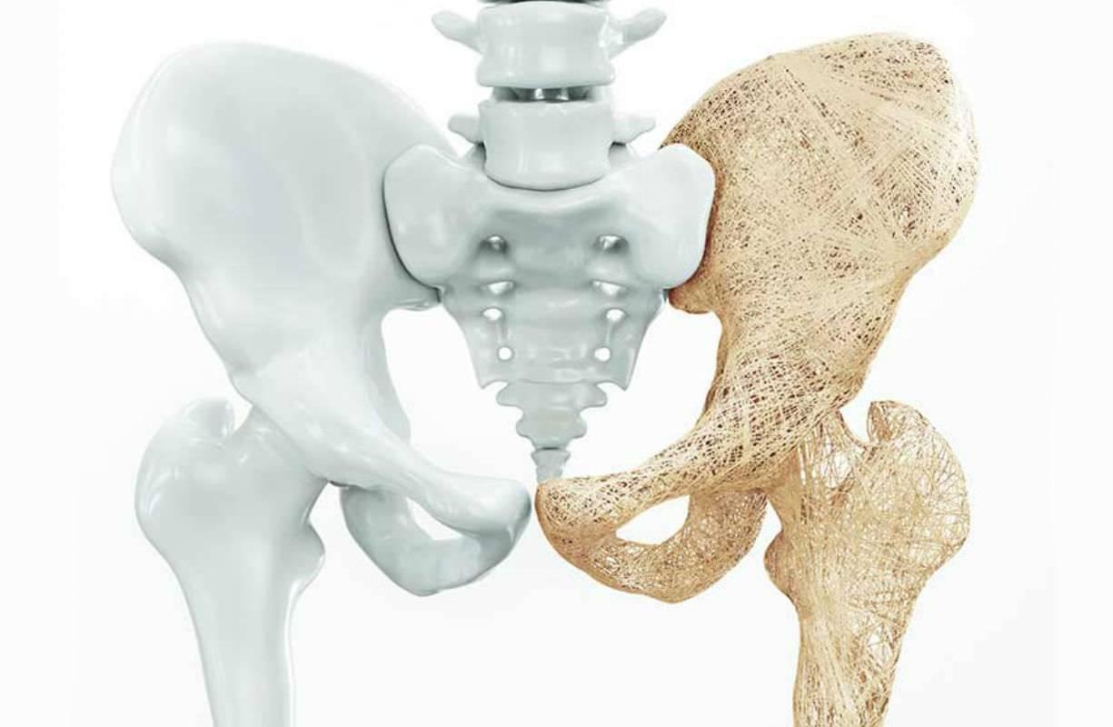 L'osteoporosi