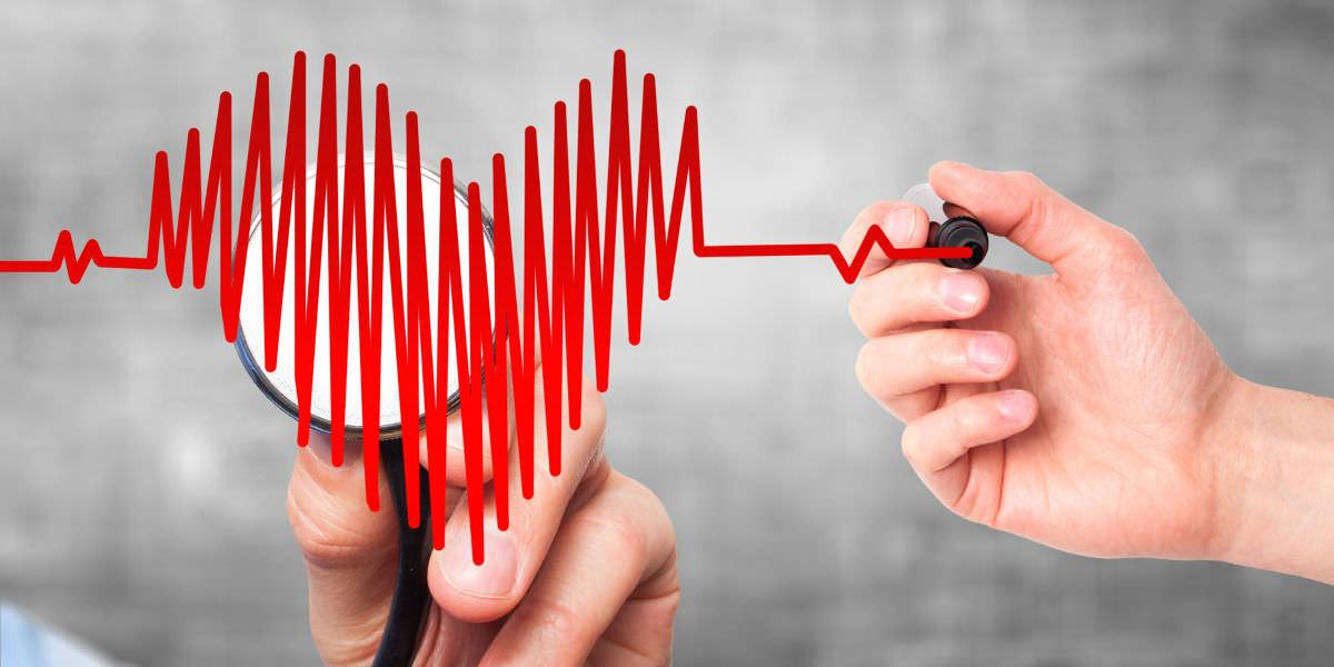 Elettrocardiogramma ECG