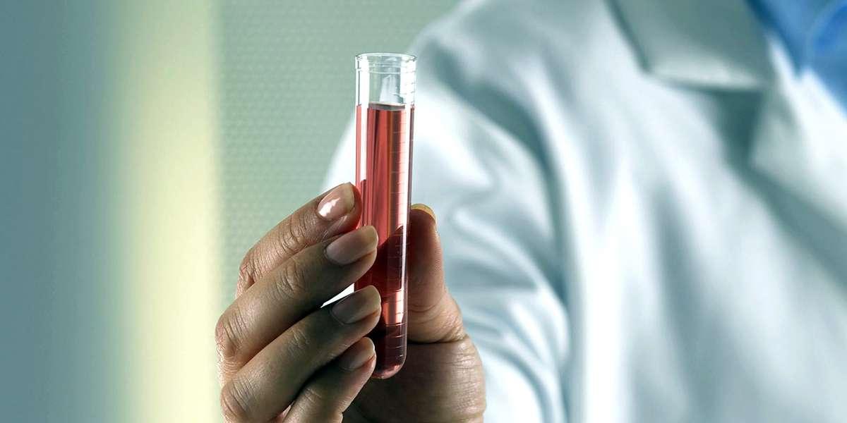 Autoanalisi del sangue