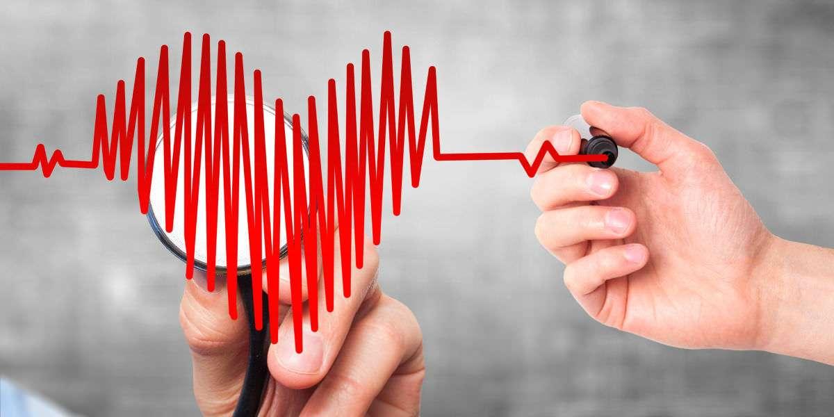 ECG -Elettrocardiogramma
