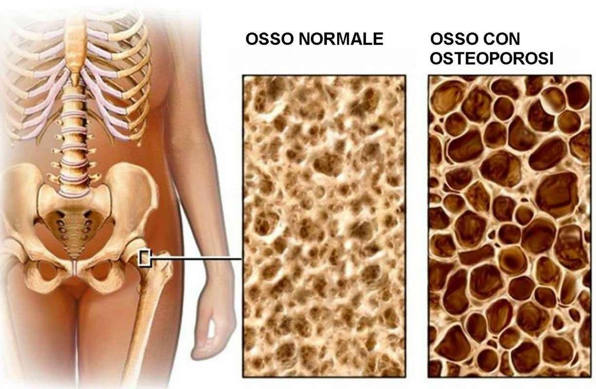 OSTEOPOROSI, UN PROBLEMA MOLTO DIFFUSO