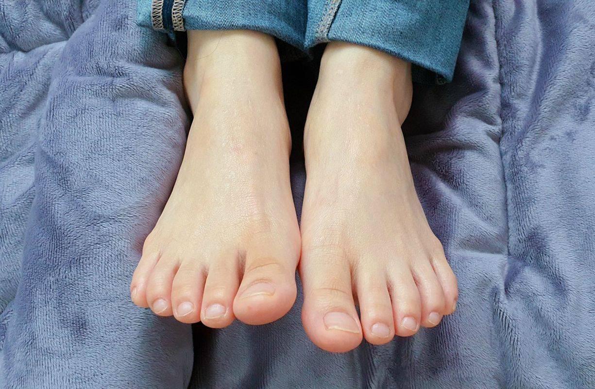 Onicomicosi o micosi delle unghie: diagnosi e trattamento